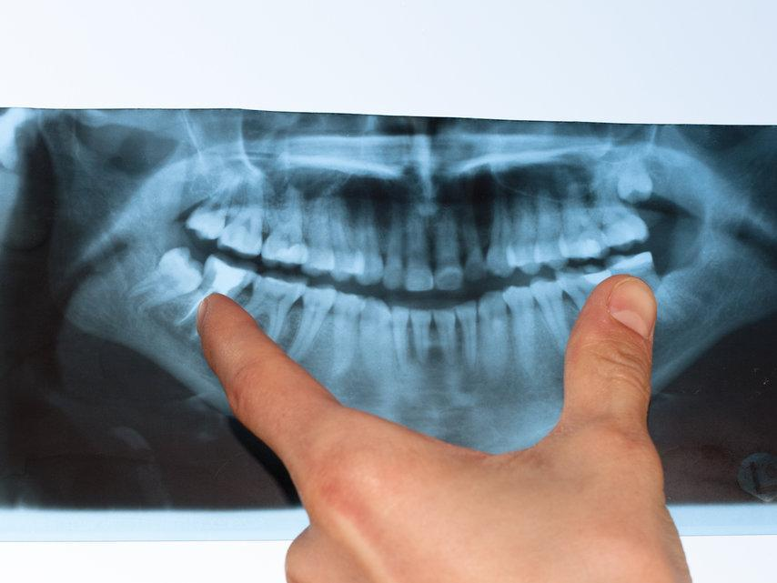 Dental X-Rays Encinitas CA