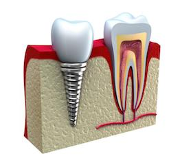 Dental implants pittsburgh pa dental implants restoration do you find yourself hiding your smile because of a missing tooth dental implants are an innovative tooth replacement option that can help you smile with solutioingenieria Images