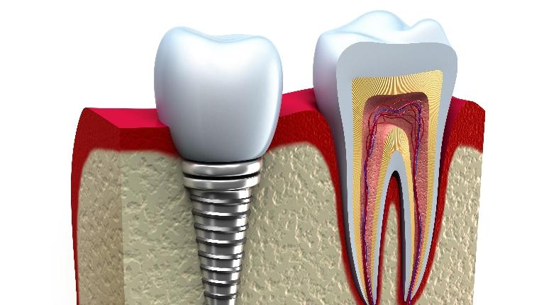 Dental Implants Arvada
