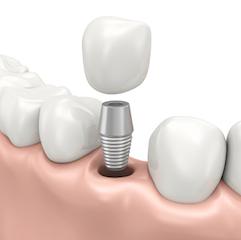 Shell Cove dental implants