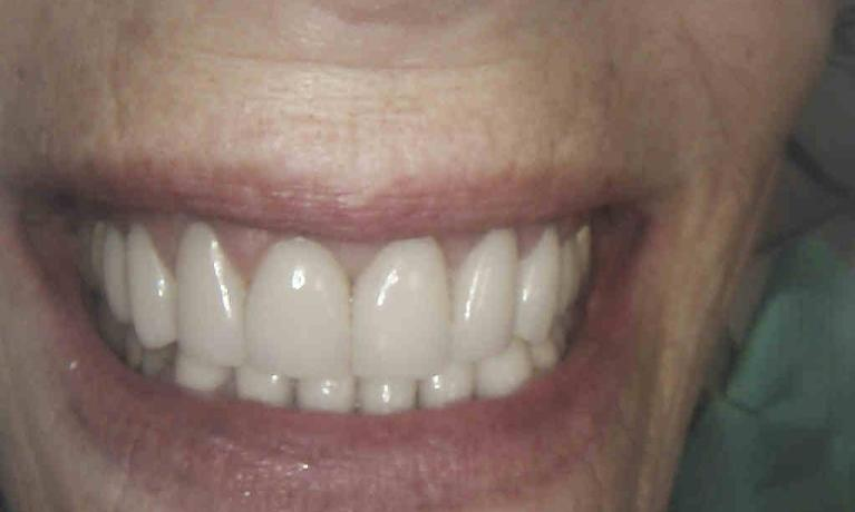 EMax-Veneers-and-Crowns-After-Image