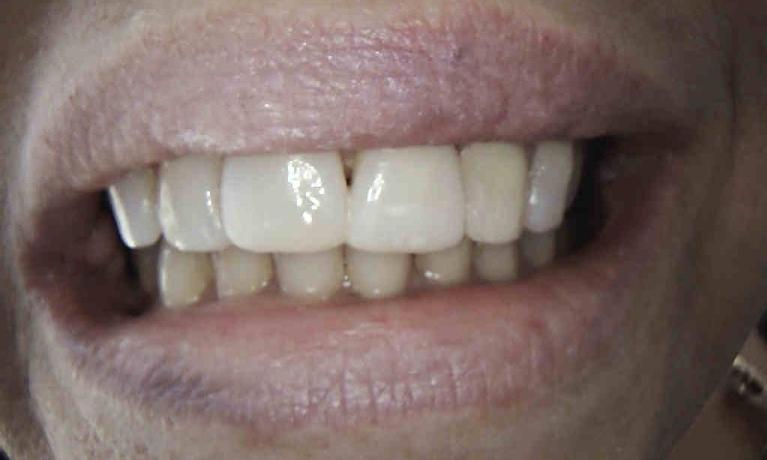 In-Office-Composite-Veneers-After-Image