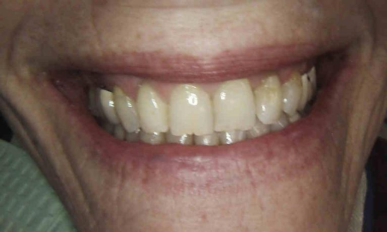 EMax-Veneers-and-Crowns-Before-Image