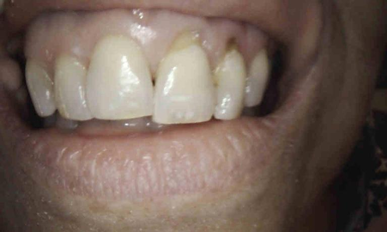 In-Office-Composite-Veneers-Before-Image