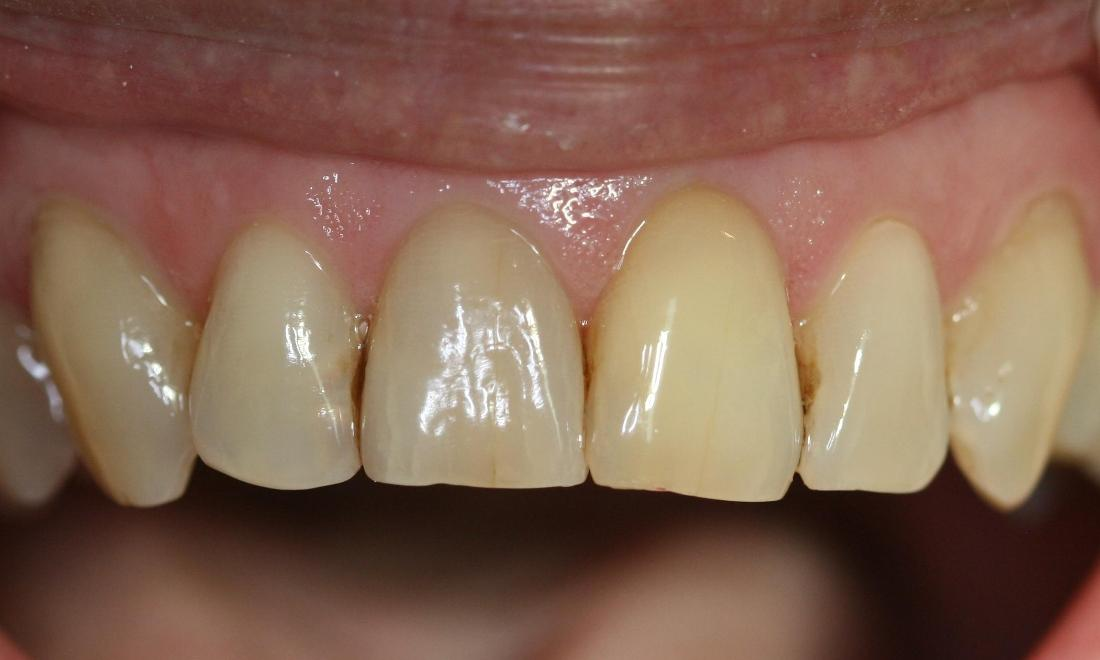 Internal Bleaching Case
