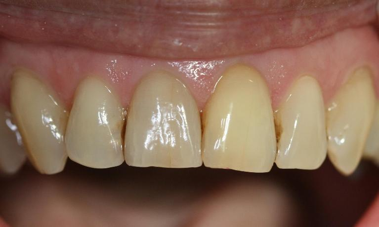 Internal-Bleaching-Case-After-Image