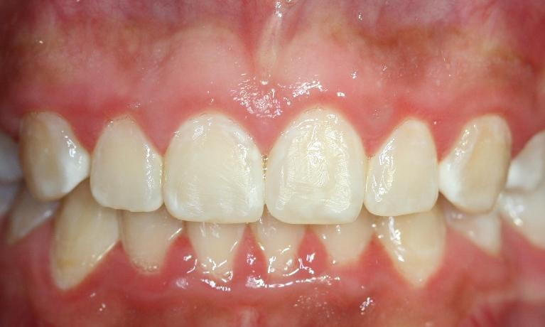 Orthodontics-After-Image