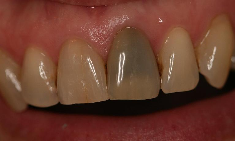 Internal-Bleaching-Case-Before-Image