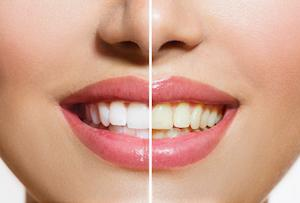 Laser Teeth Whitening Irvine Ca Formosa Dental Arts