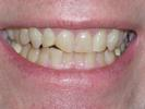 Ex-Football-Player-Veneers-Teeth-Before-Image