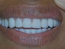 Veneers-Fixed-My-Gaps-After-Image