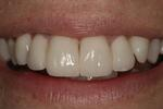 Veneers-Instead-Of-Braces-After-Image