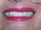 Fang-Look-Gone-With-Veneers-After-Image