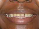 A-Partial-Denture-For-My-Front-Teeth-Before-Image