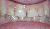 Veneers-Covering-Erosion-Before-Image
