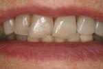 Implants-For-Missing-Lower-Front-Teeth-After-Image