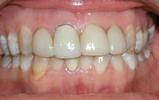 Nice-Smile-With-Veneers-Before-Image