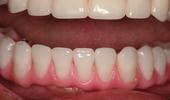 Implant-Denture-That-Never-Comes-Out-After-Image