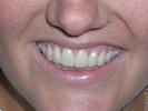 Wedding-Veneers-After-Image
