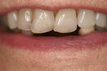 Implants-For-Missing-Lower-Front-Teeth-Before-Image
