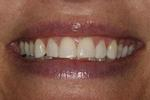 Partial-Veneers-After-Image