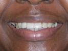 A-Partial-Denture-For-My-Front-Teeth-After-Image