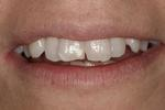 Veneers-Instead-Of-Braces-Before-Image