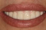A-New-Smile-With-My-Implants-After-Image