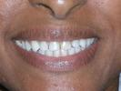 Veneers-Fixed-My-Gaps-Before-Image