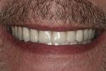A-New-Smile-While-Waiting-for-My-Implants-After-Image