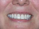 Nice-Smile-With-Veneers-After-Image