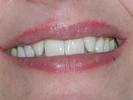 Fang-Look-Gone-With-Veneers-Before-Image