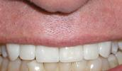 Veneers-Covering-Erosion-After-Image