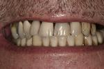 A-New-Smile-While-Waiting-for-My-Implants-Before-Image