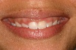 Esthetic-periodontal-Gum-therapy-Before-Image