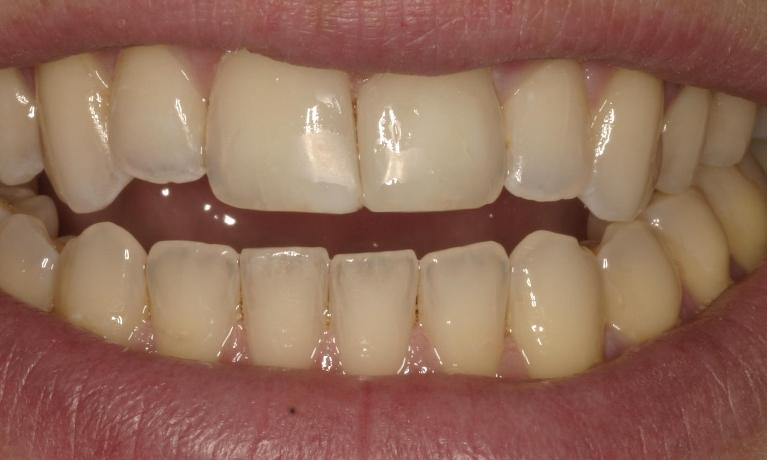 Unsightly-gap-in-front-teeth-disappears-in-under-1-hour-After-Image