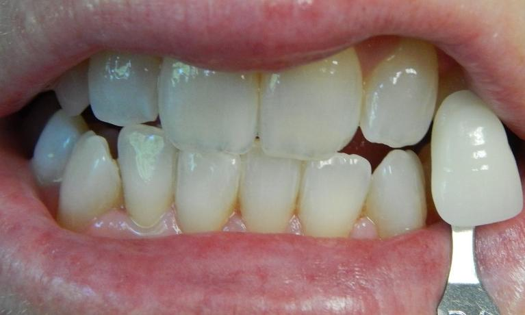 Professional-Teeth-Whitening-After-Image