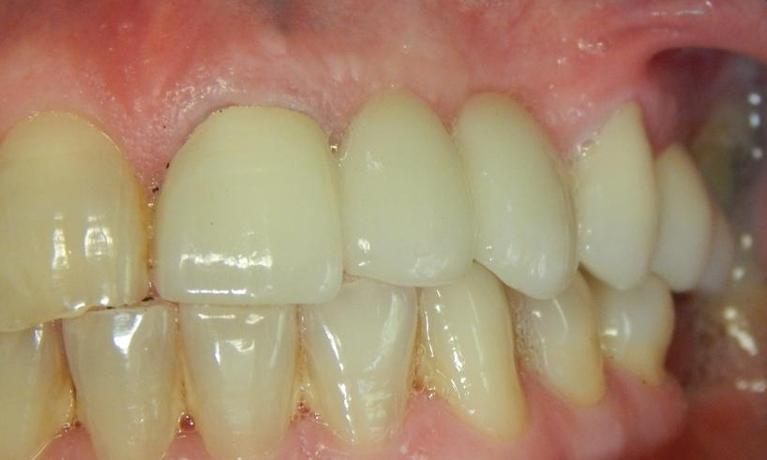 Zirconia-Bridge-After-Image