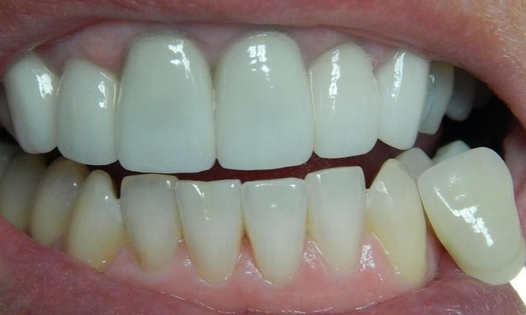 Professional-Teeth-Whitening-Before-Image