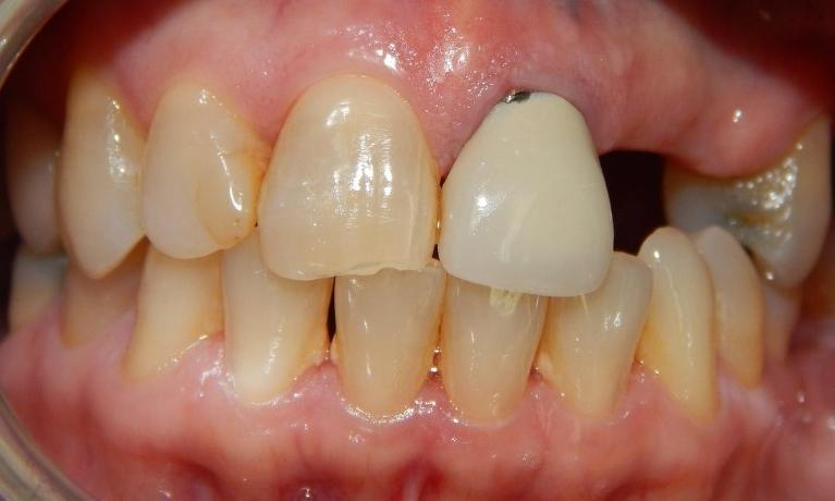 Zirconia-Bridge-Before-Image
