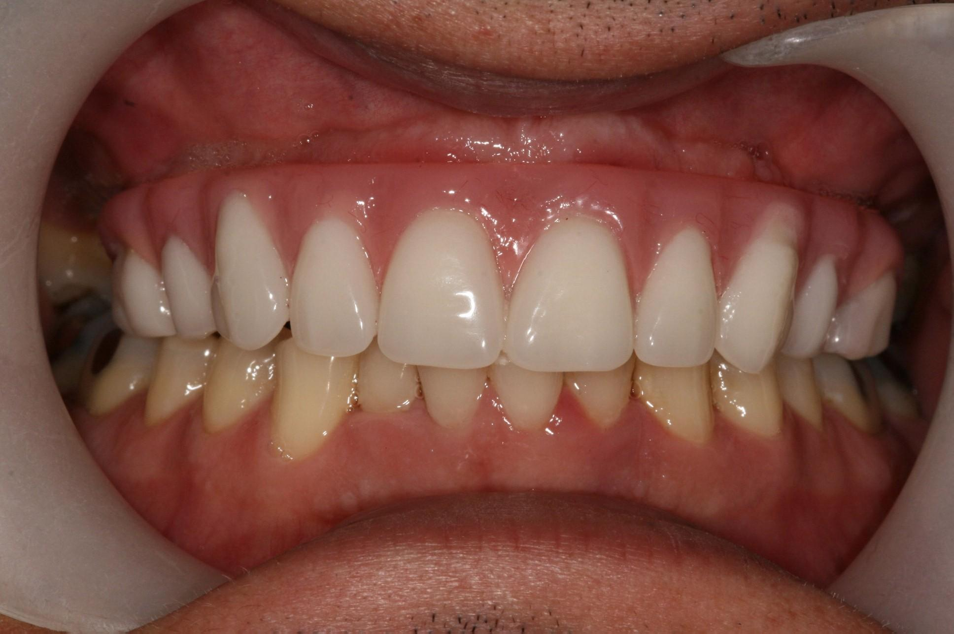 All on 4 Teeth in a Day Dr. Burkholder