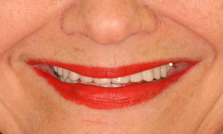 Cosmetic-Make-Over-with-Dental-Implants-and-Porcelain-Crowns-After-Image