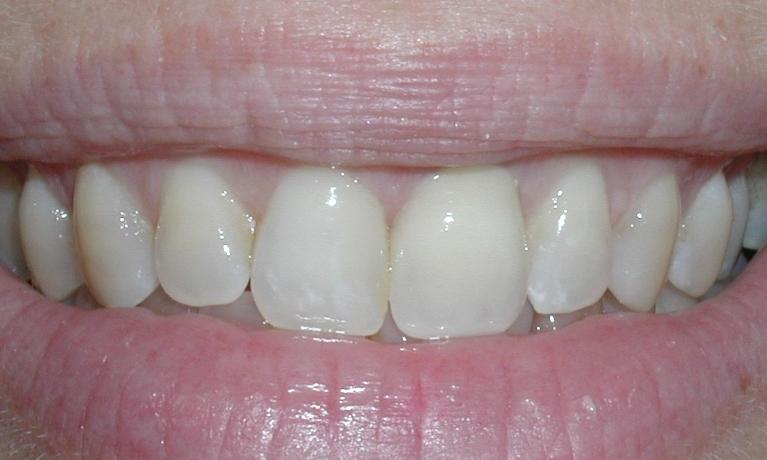 Dental-Implants-Case-4-Single-Tooth-Implant-After-Image