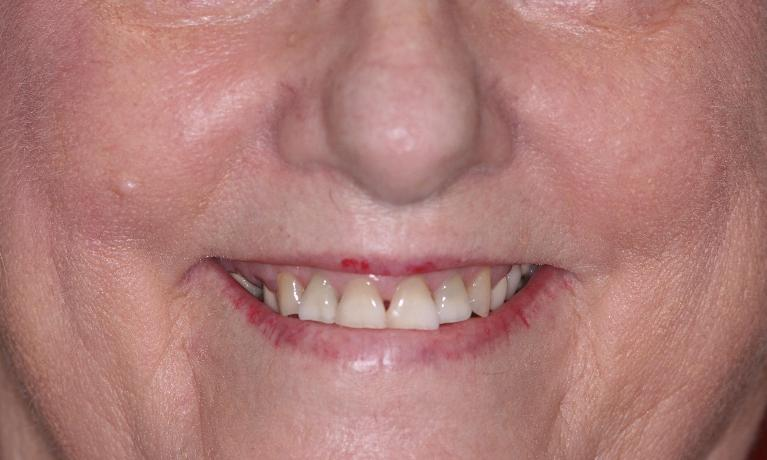 Case-2-All-on-4-Teeth-in-a-Day-Dental-Bridges-Before-Image
