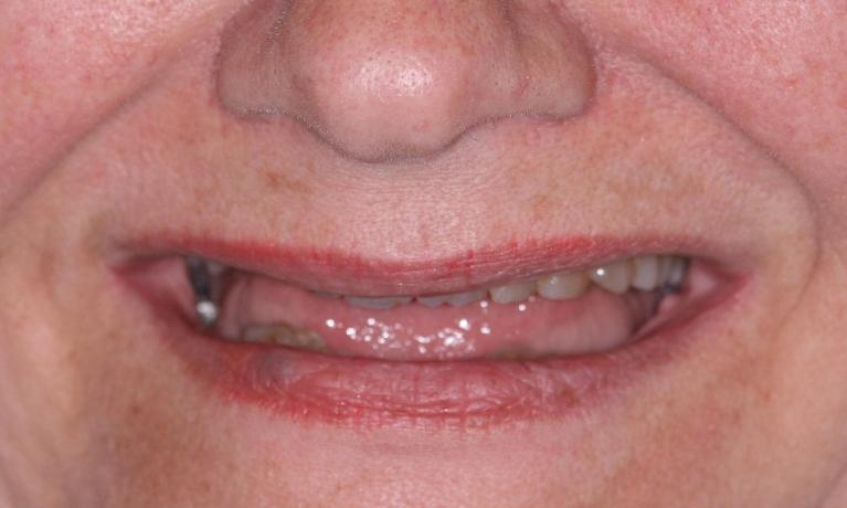 Cosmetic-Make-Over-with-Dental-Implants-and-Porcelain-Crowns-Before-Image