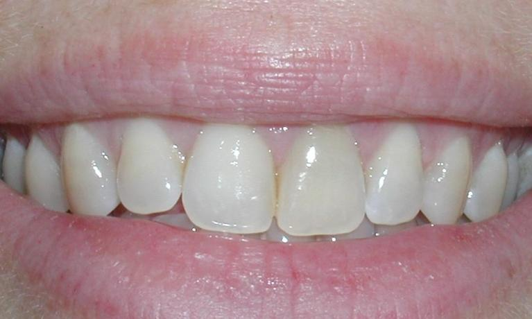 Dental-Implants-Case-4-Single-Tooth-Implant-Before-Image