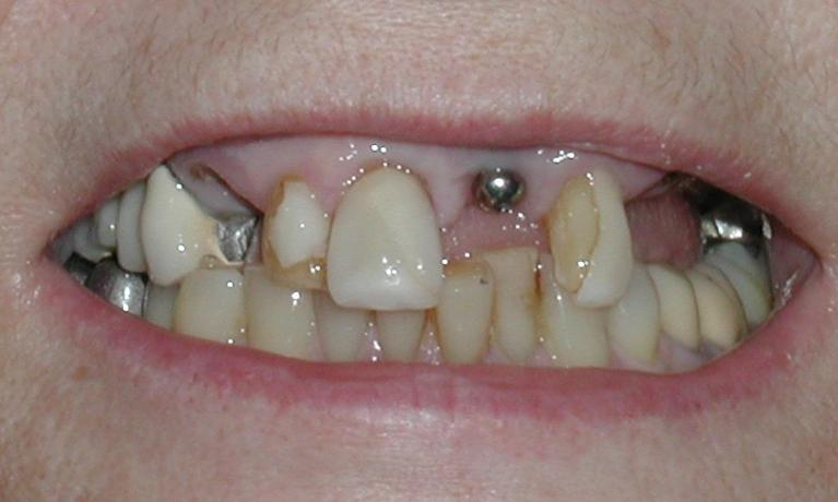 Dental-Implants-Case-5-Full-Upper-Implant-Crowns-Before-Image