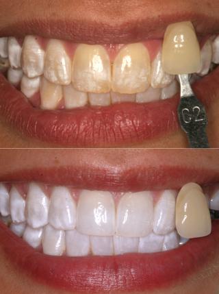 teeth whitening greeley co
