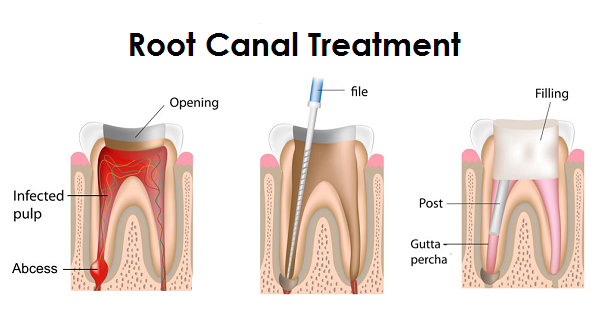 Root Canal Treatment Williams Ca Gill Dental