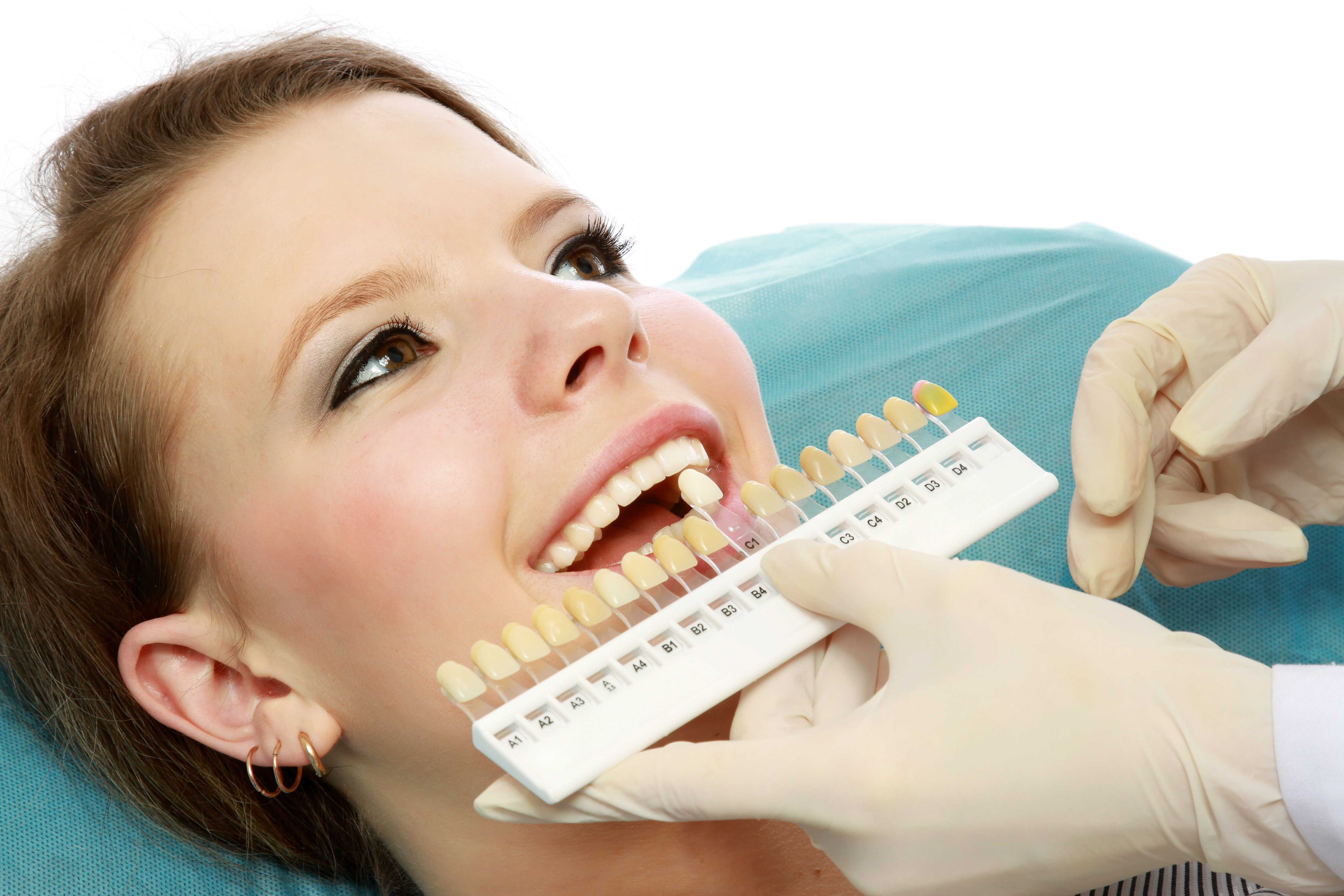 Teeth Whitening Naples FL